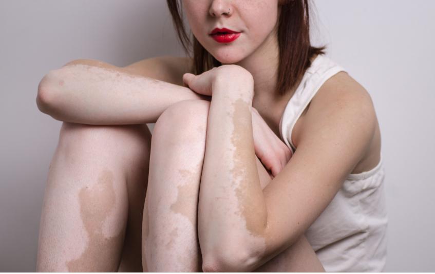 combating vitiligo