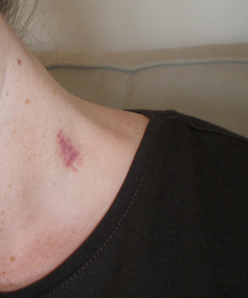 Get Rid of Hickey