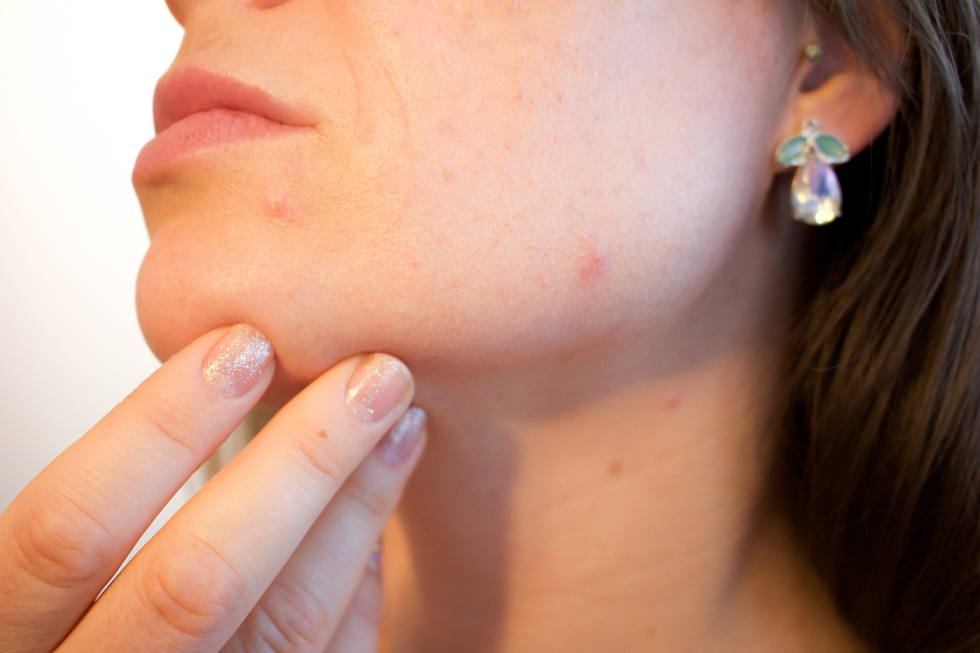 home remedies pimples