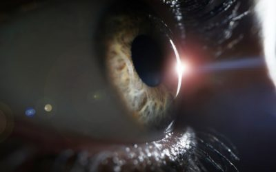 Laser Treatment for Cataracts