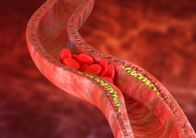 Get Screened For Cholesterol
