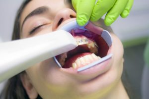 3. Periodontal Gum Disease