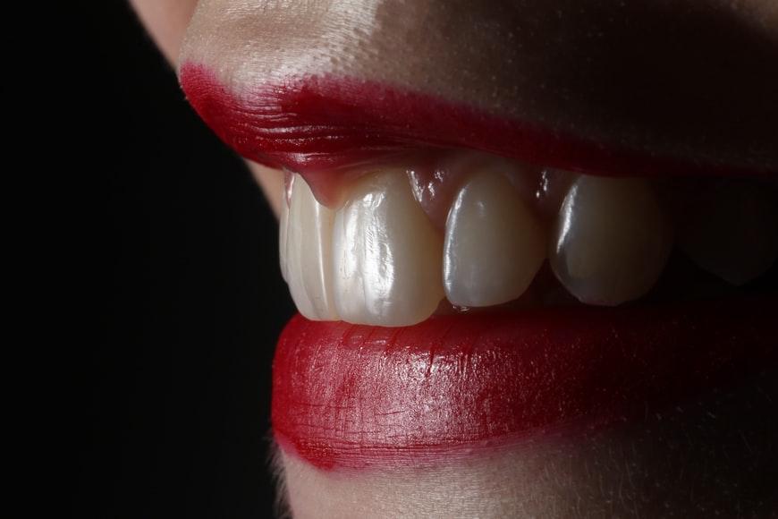 1. Teeth Whitening